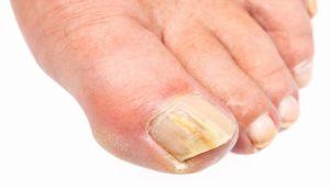nail fungus infection candida feet